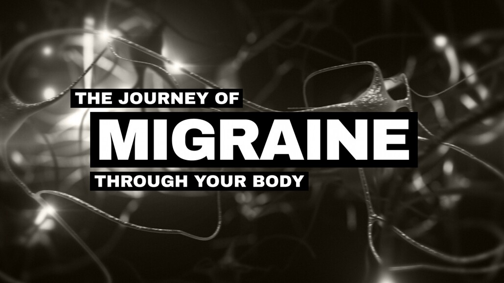 webmd journey of migraine