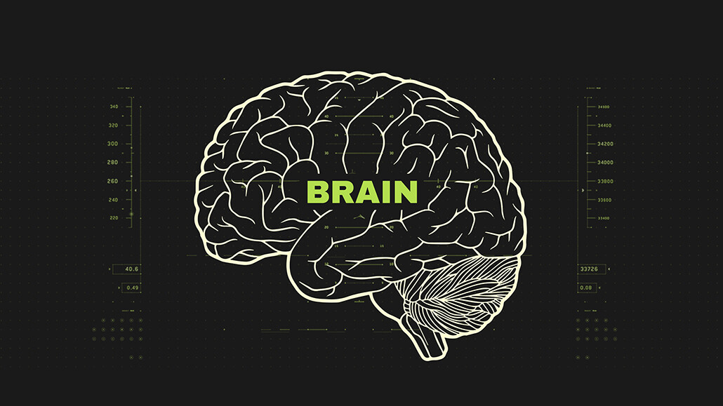webmd migraines brain3