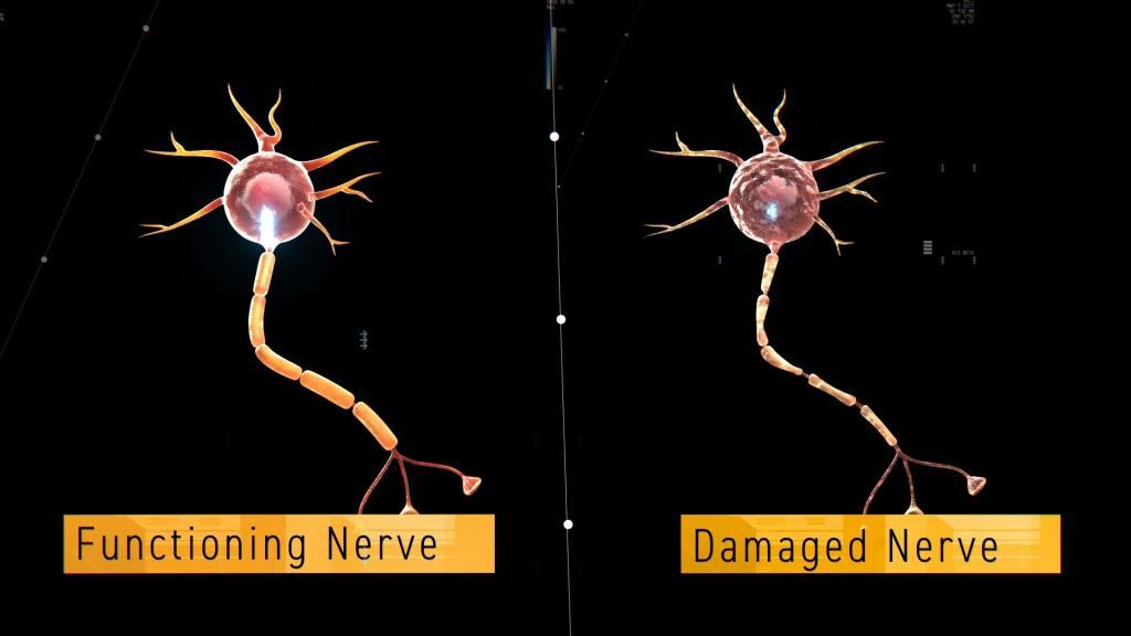 Animated medical explainer of healthy nerve and a sick nerve